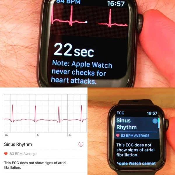 apple smartwatch ECG