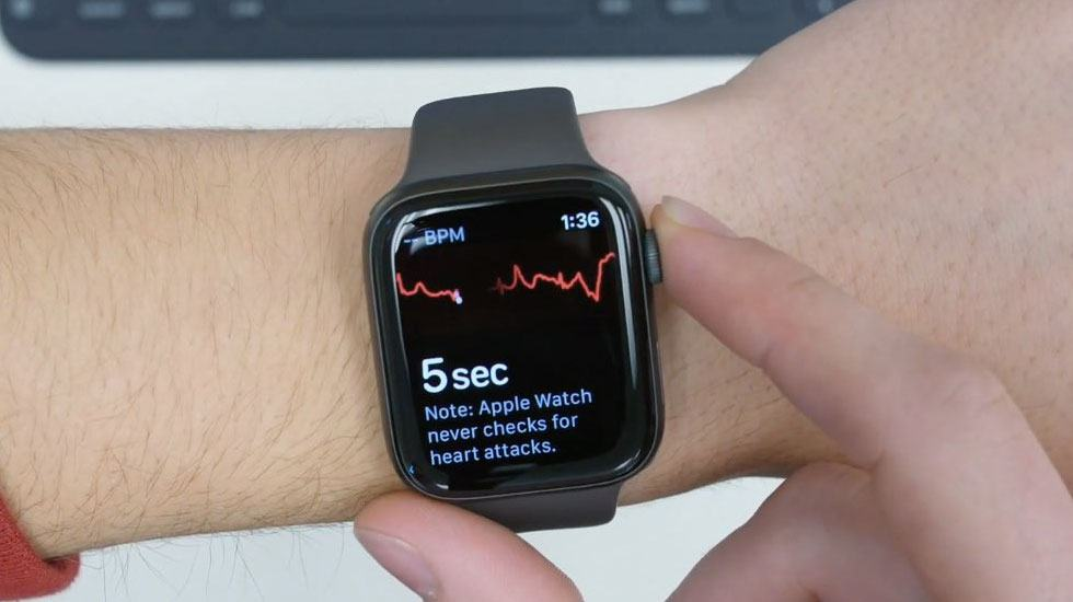 ECG trên Apple Watch