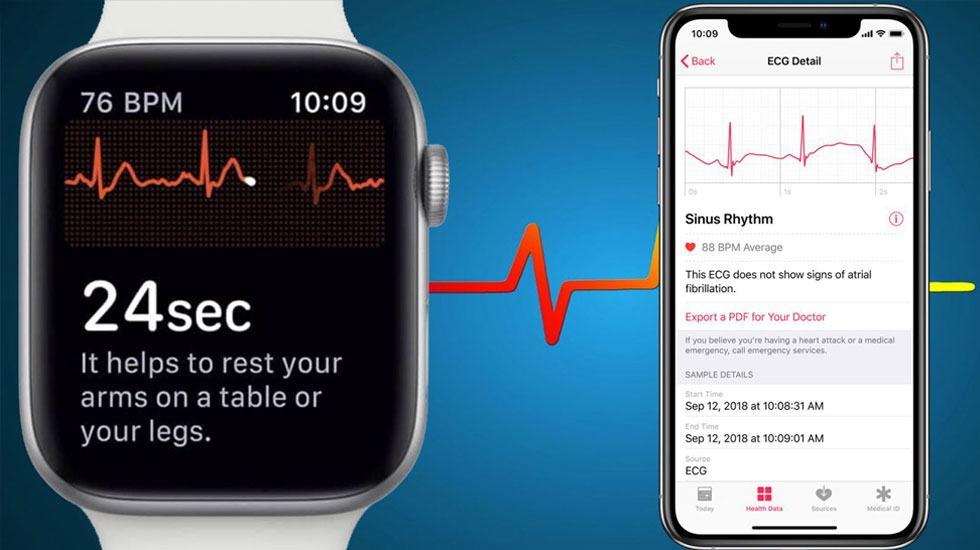 báo cáo từ ứng dung ECG trên Apple Watch