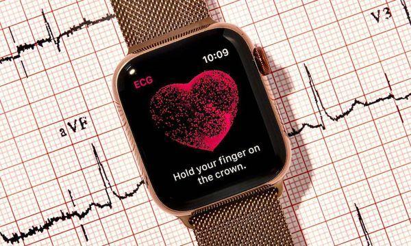 Apple Smartwatch ECG - Lý do các bác sĩ tim mạch lo lắng về ECG của Apple Watch